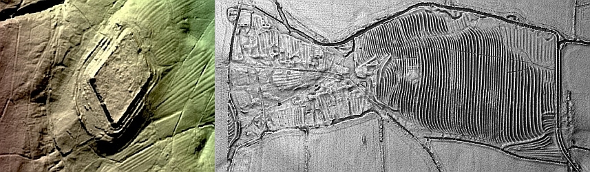 Lidar of Epiacum and Metfen DMV
